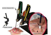 达芬奇手术机器人具有了防止伤害的触觉感知能力-ope体育专业版那点事